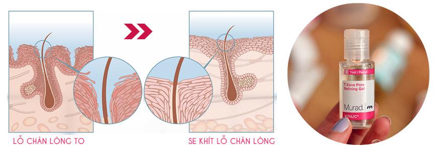 Gel se khít lỗ chân lông vùng chữ T Murad T-Zone Pore Refining Gel 2
