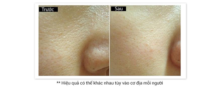 Gel se khít lỗ chân lông vùng chữ T Murad T-Zone Pore Refining Gel 3