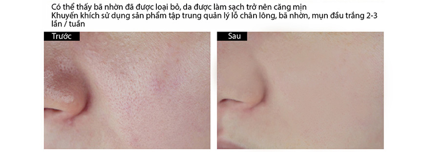 Hiệu quả Pores No More Pore Thing Dr. Brandt