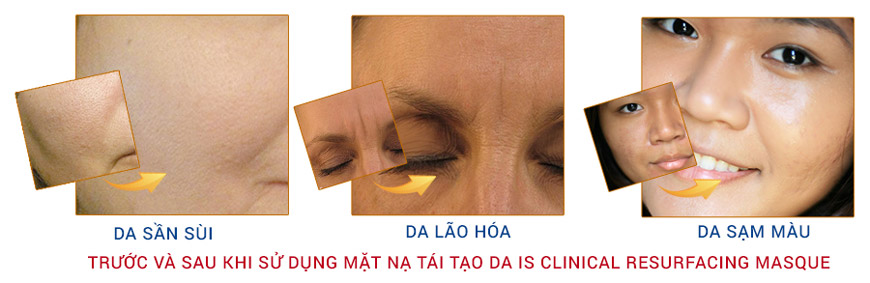 Mặt nạ tái tạo da Is Clinical Resurfacing Masque 2