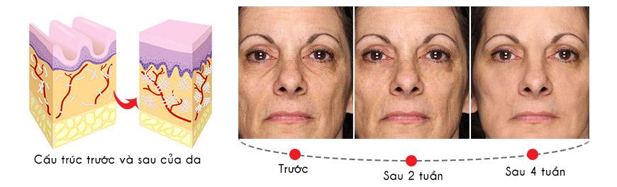 Công dụng Murad Perfecting Day Cream SPF 30 PA+++
