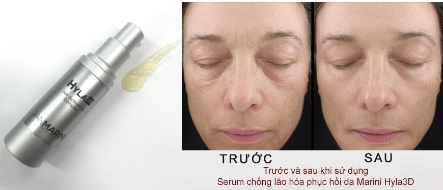 Serum chống lão hóa dưỡng ẩm Jan Marini Hyla 3D HA Activating 2