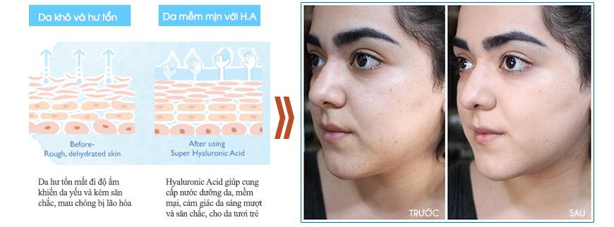 Hiệu quả Serum dưỡng ẩm chống lão hóa Medpeel Hyaluronic Replenish