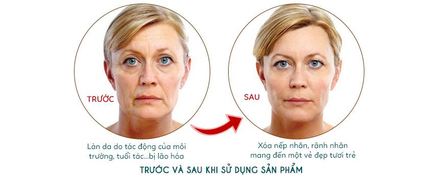 Hiệu quả serum Dr. Brandt Collagen Booster