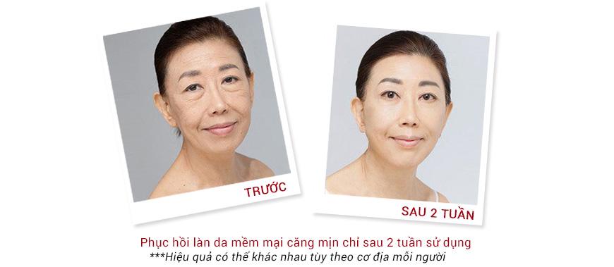 Hiệu quả Serum chống lão hóa phục hồi da Murad Intensive Age Diffusing