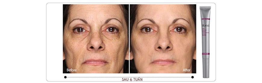 Hiệu quả Serum Murad Time Release Retinol Concentrate