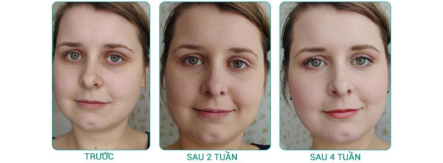 Serum dưỡng da, làm dịu da Murad Sensitive Skin Soothing Serum 3