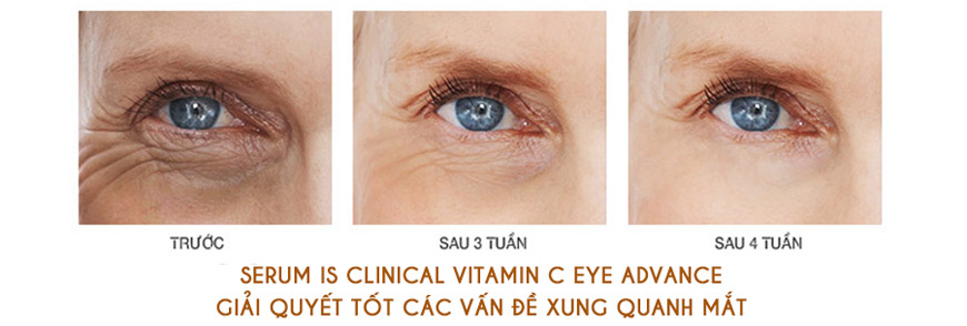 Hiệu quả Serum iS Clinical Vitamin C Eye
