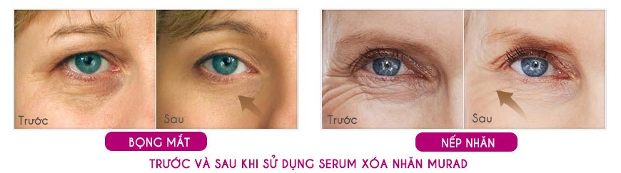 Hiệu quả Serum Murad Intensive Wrinkle Reducer For Eyes 2