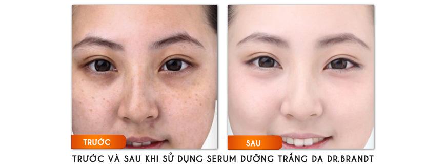 Công dụng serum dưỡng trắng da Dr. Brandt Light Years Away Whitening Essence