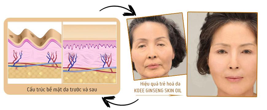Serum dưỡng trắng da xóa nhăn Koee Ginseng Skin Oil 3