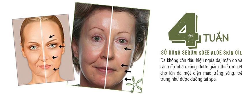 Serum dưỡng trắng làm dịu da Koee Aloe Skin Oil 3