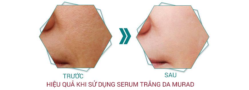 Hiệu quả serum trắng da se khít lỗ chân lông
