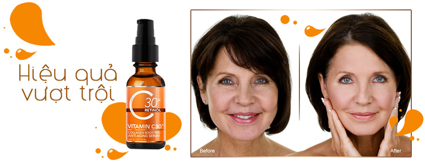 Hiệu quả Serum Medpeel Vitamin C30x Retinol