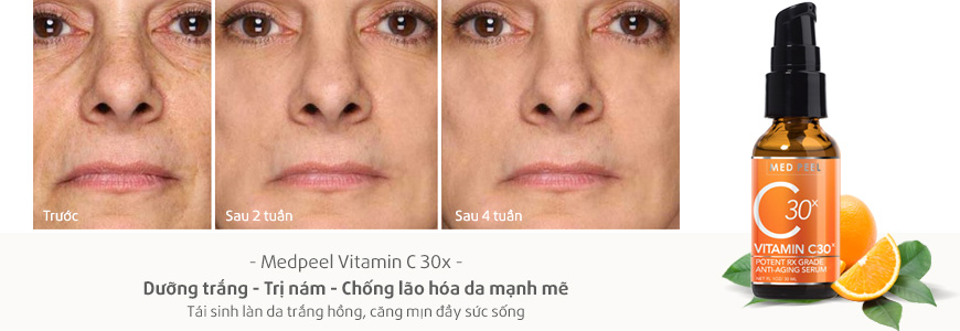 Serum trắng da giảm nám Medpeel Vitamin C 30x 3