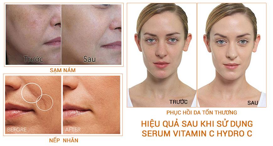 Hiệu quả Serum trắng da Hydro C+ Vitamin CE20%