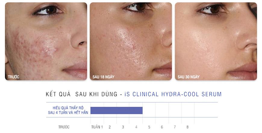 Serum giảm kích ứng mẩn đỏ ngừa mụn iS Clinical Hydra Cool 2
