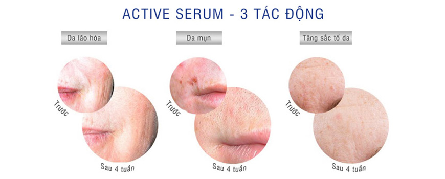 Serum giảm mụn đầu đen, mụn cám IS Clinical Active 2