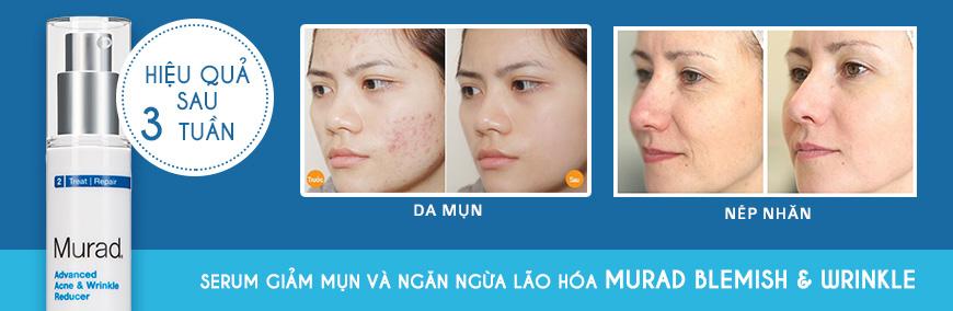 Serum giúp giảm mụn chống lão hóa Murad Advanced 2