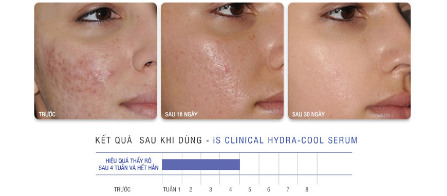 Serum hỗ trợ trị mụn mủ IS Clinical Pro-Heal Advanced 3