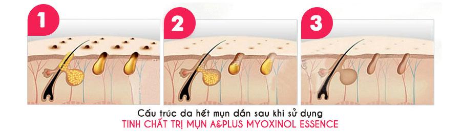 Công dụng A&Plus Myoxinol Essence A020