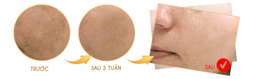Công dụng Serum trị nám iS Clinical C&E Advanced
