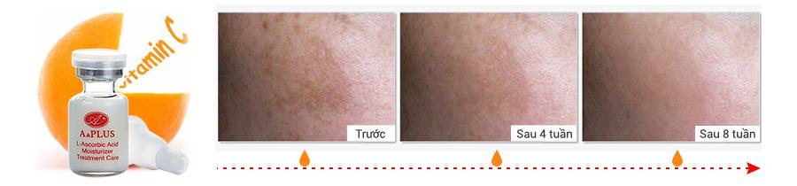 [Hình: serum-tri-nam-trang-da-aplus-l-ascorbic-...a019-3.jpg]