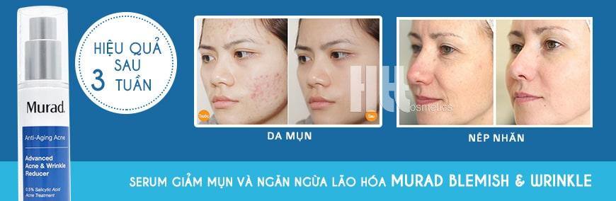 Serum trị mụn chống lão hóa Murad Advanced Blemish & Wrinkle Reducer