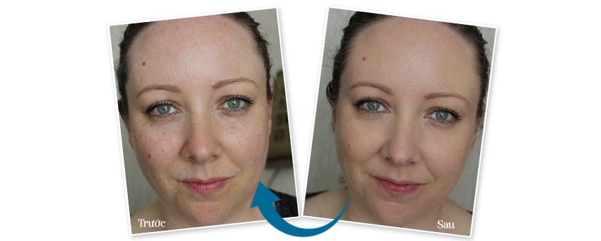 Sữa rửa mặt giảm mụn, chống lão hóa da Murad Time Release Acne Cleanser 3