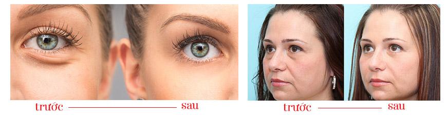 Công dụng Murad Hybrids Eye Lift Illuminator
