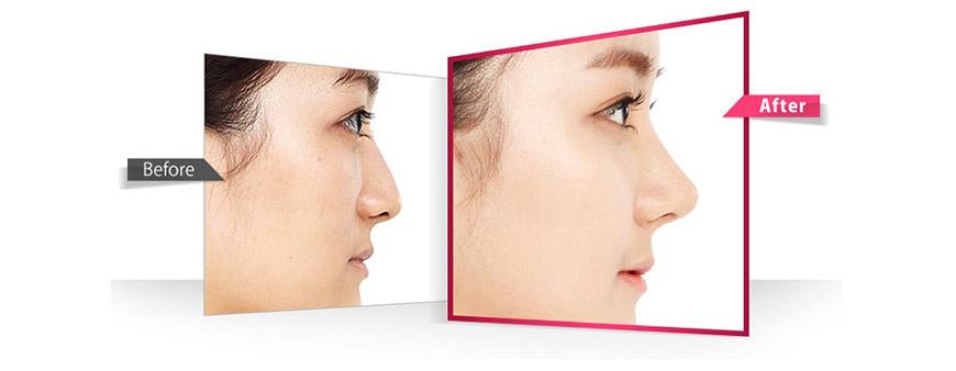 Công dụng phấn phủ chống nắng iS Clinical Powder Sunscreens SPF 20