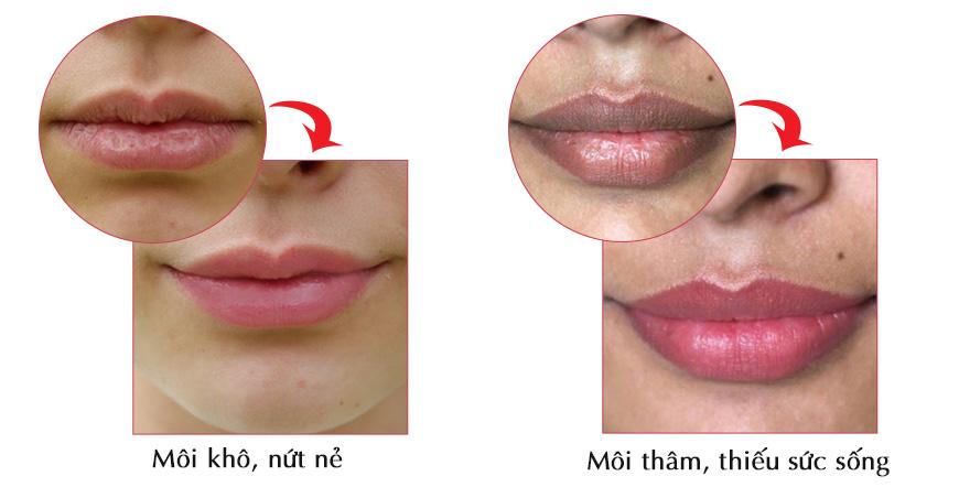 Kem dưỡng môi Jan Marini Hyla 3D Lip Complex 2