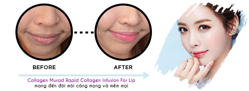 Hiệu quả Murad Rapid Collagen Infusion For Lip