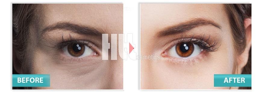 Trước và sau khi sử dụng Serum Skin Pasion Extra Firming Eye Lift Treatment