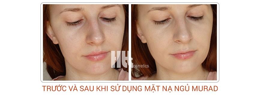 Công dụng Murad City Skin Overnight Detox Moisturizer