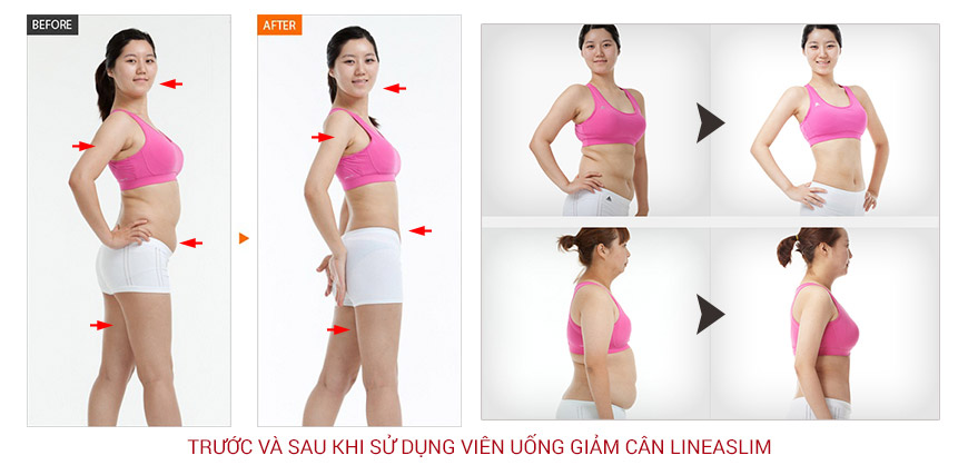 Công dụng viên uống giảm cân Lineaslim Garcinia Cambogia 70% HCA