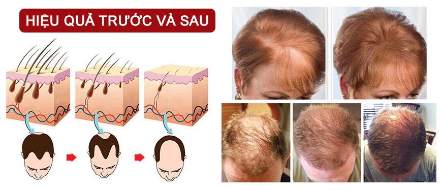 Công dụng viên uống mọc tóc Hair Gain Med-Eq Gaiapharma